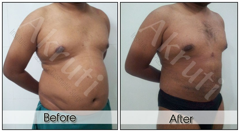 Best weight loss doctor houston picture 9