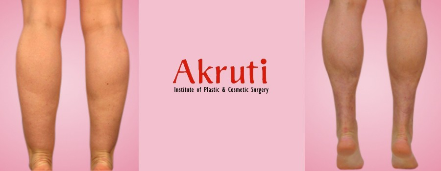Thigh Shaping Surgery at Akruti Clinic in Hyderabad-India