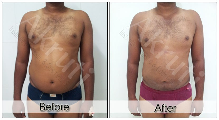 Liposuction Surgery in Hyderabad