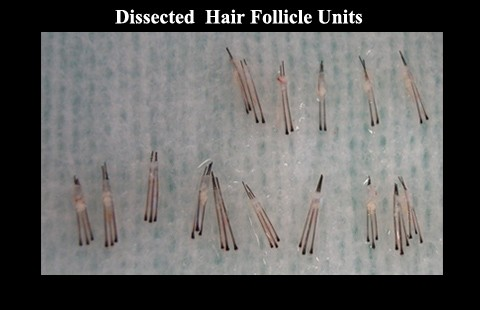dissected hair follicular units