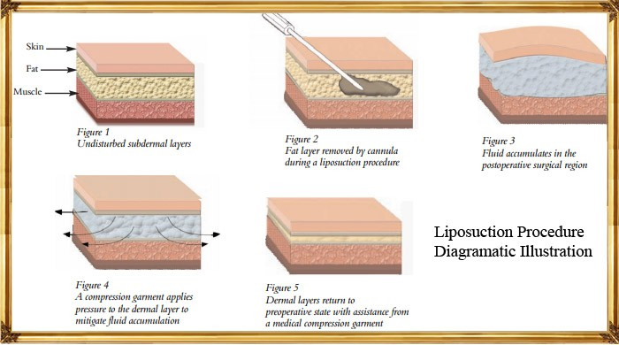 Liposuction-Diagramatic-Illustration-by-Akruti