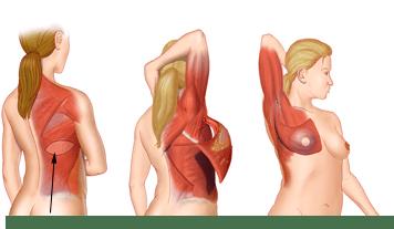 Breast Reconstruction Flap Technique