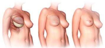 breast reconstruction Implant Technique