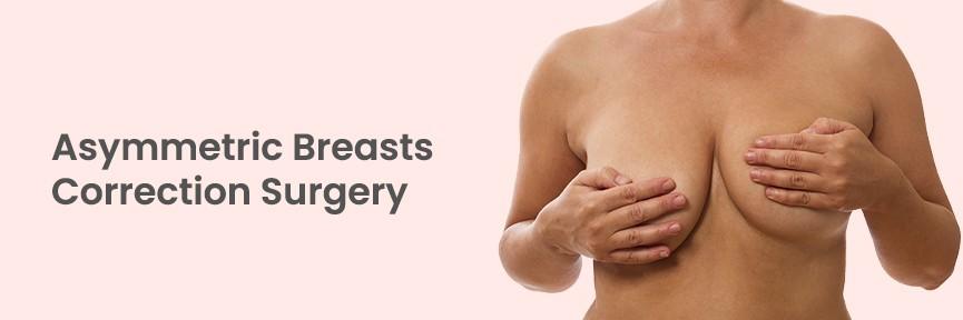 Breast Asymmetry in Hyderabad, India