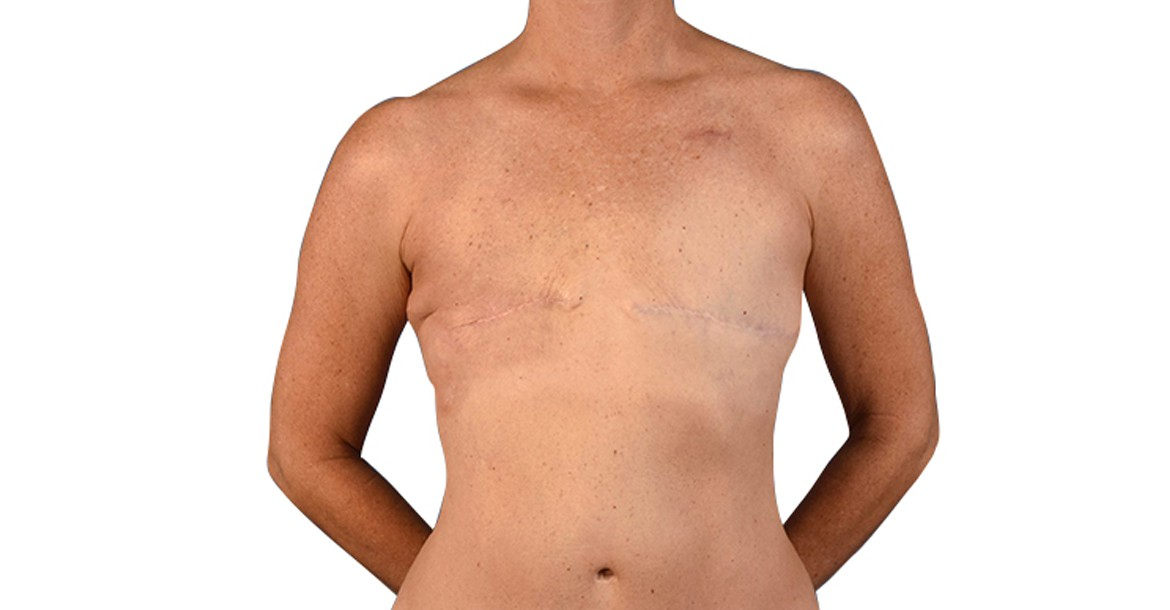 Breast Reconstruction Surgery in Hyderabad, India