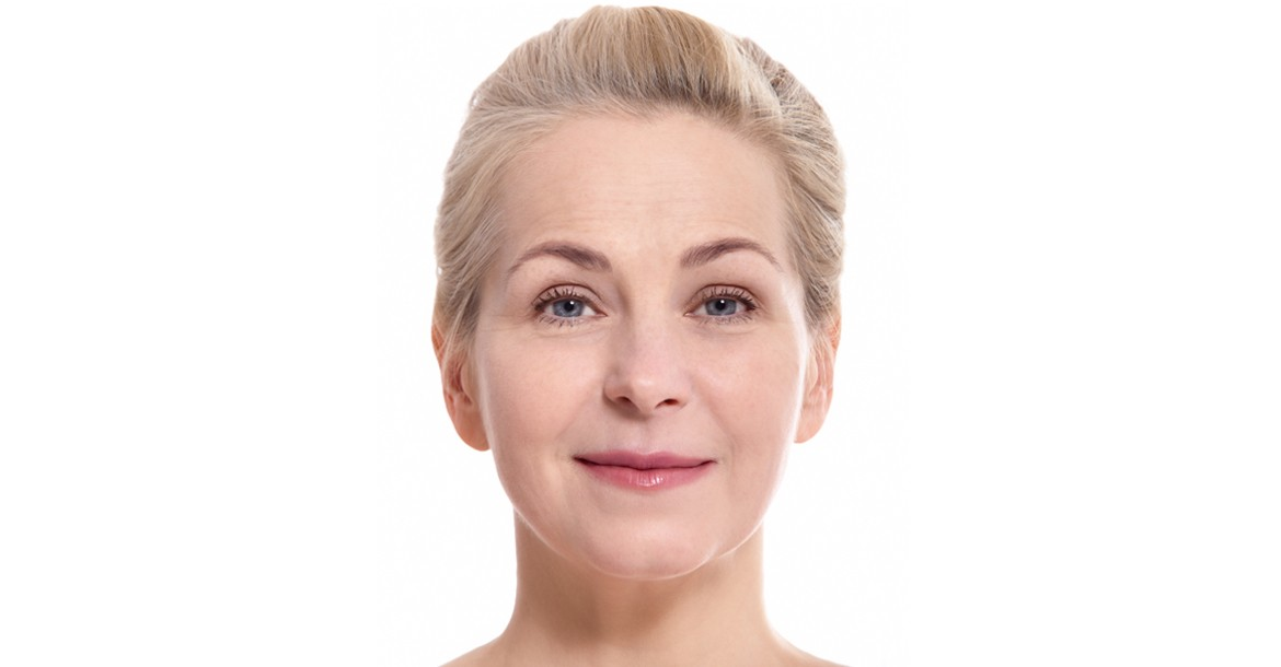 Face Lift Surgeon in Hyderabad