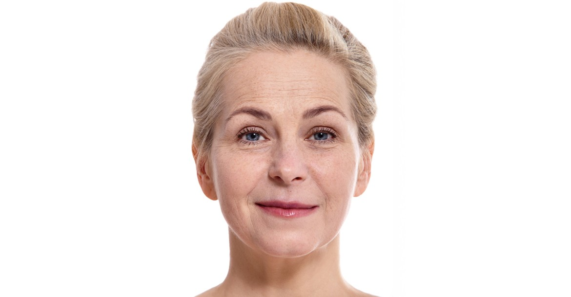 Face Lift Surgery in Hyderabad (India)